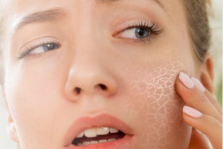 A women felt worry with her dry skin