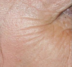 wrinkles, wrinkled skin, snowperk, snowperkiD, lucas meyer
