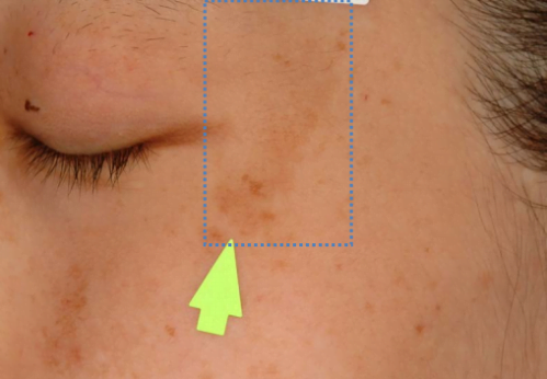 pigmented skin pointed out with yellow arrow and highlighted with blue dots