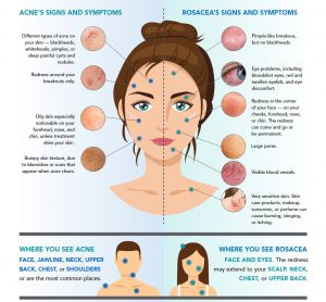Infographic showcasing the differences between someone with acne and someone that has sensitive skin and acne symptoms caused by rosacea.