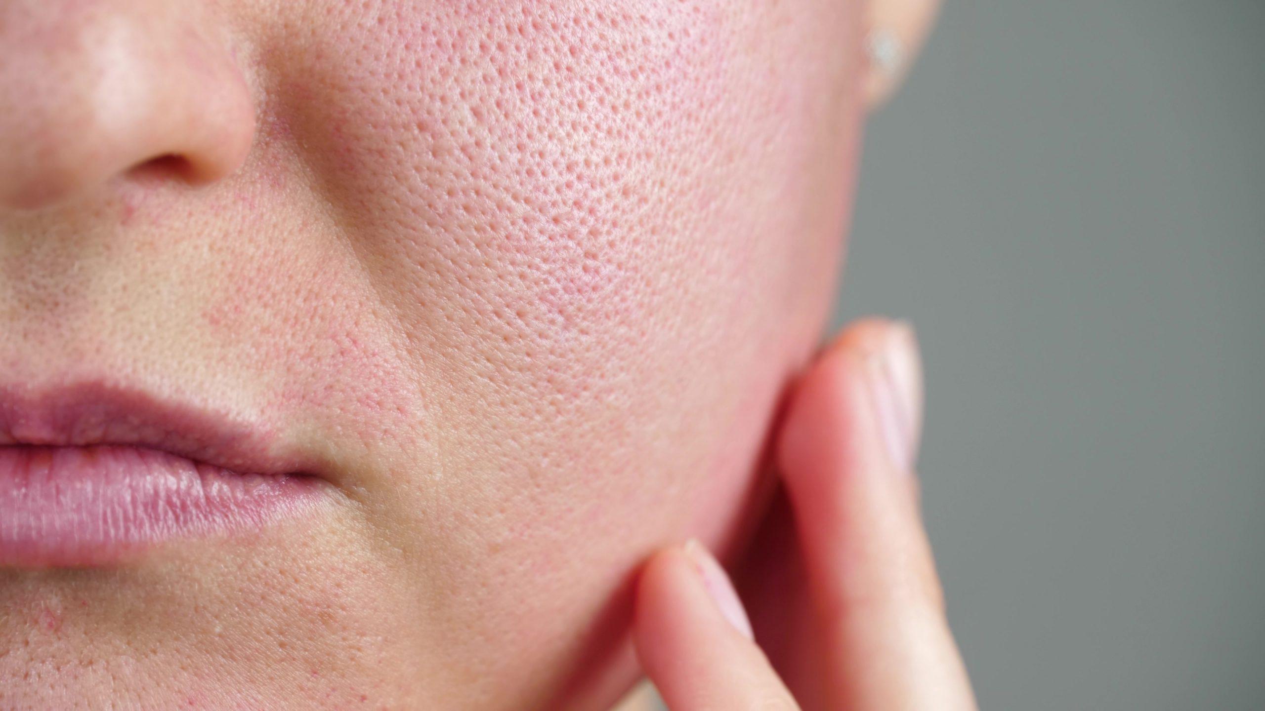 snowperk_how to minimise your pores
